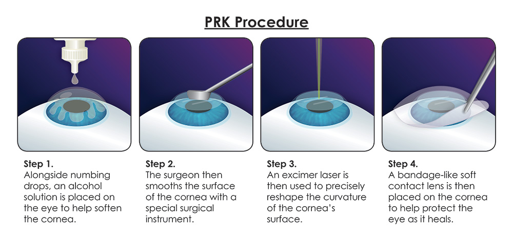 prk-procedure
