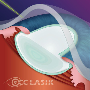 Step 1 - Laser applied to perform clear cornea incision.