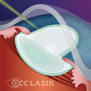 Step 2 - Laser applied to make an opening in the capsular bag that surrounds the cataract.